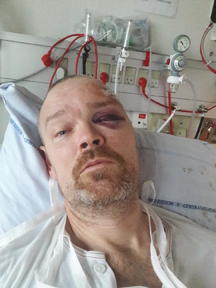 Kenneth fik et blåt øje og et sår i panden da han faldt om.