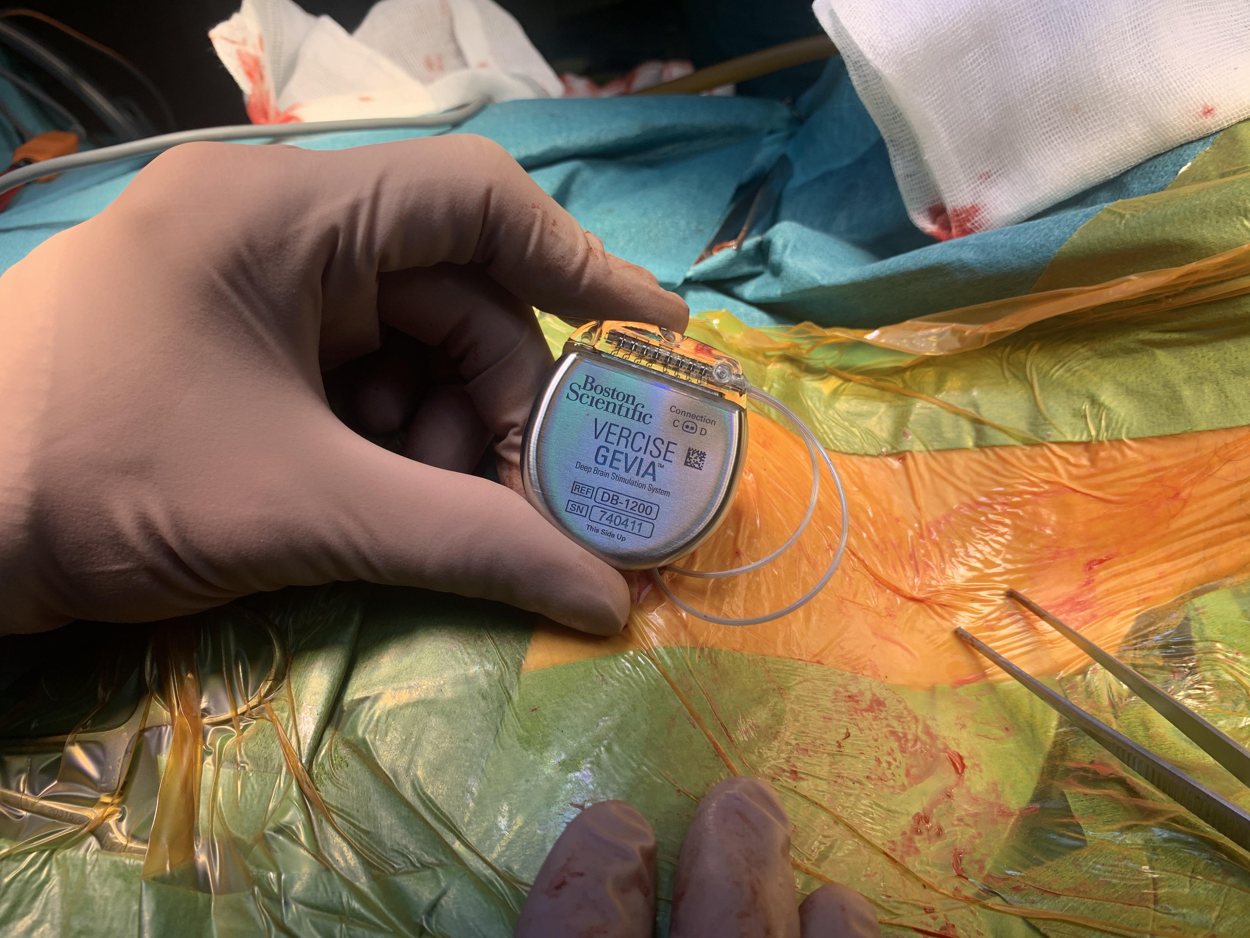 Stimulatoren indopereres i patientens bryst. Den kan genoplader gennem huden og kan holde 25 år.